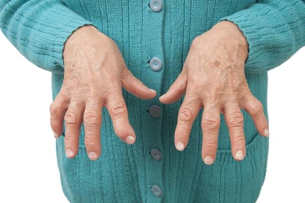 الروماتويد مرض المفاصل و العظام