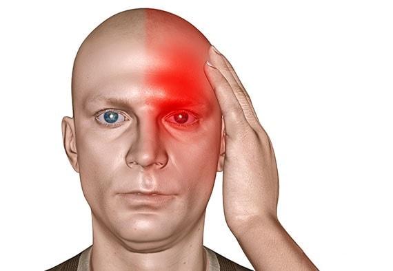اعراض الشقيقة او اعراض الصداع النصفي