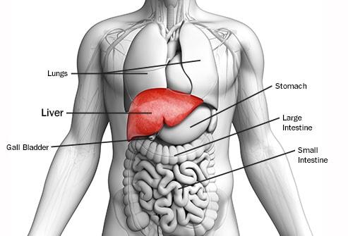 اعراض سرطان الكبد المتقدمة