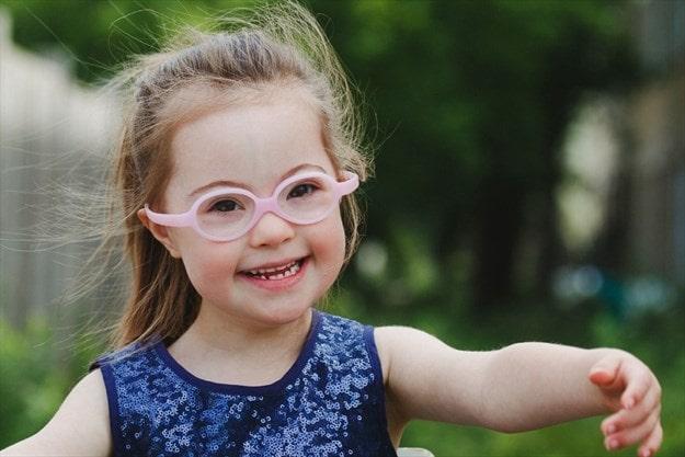 اعراض متلازمة داون عند الاطفال