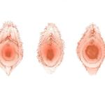 طرق تضييق المهبل بعد الولادة
