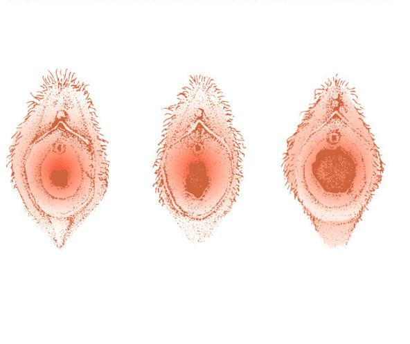 تضييق المهبل بعد الولادة جراحيا