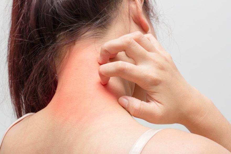 اسباب حساسية الجلد