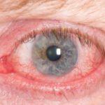 طرق علاج التهاب العين