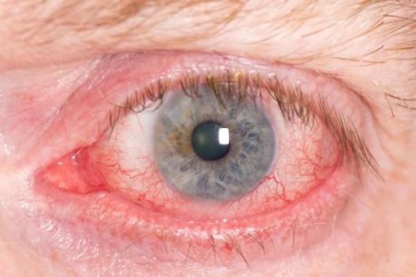 علاج التهاب العين في المنزل