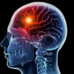 علاج الجلطة الدماغية
