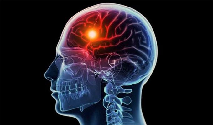 طرق علاج الجلطة الدماغية