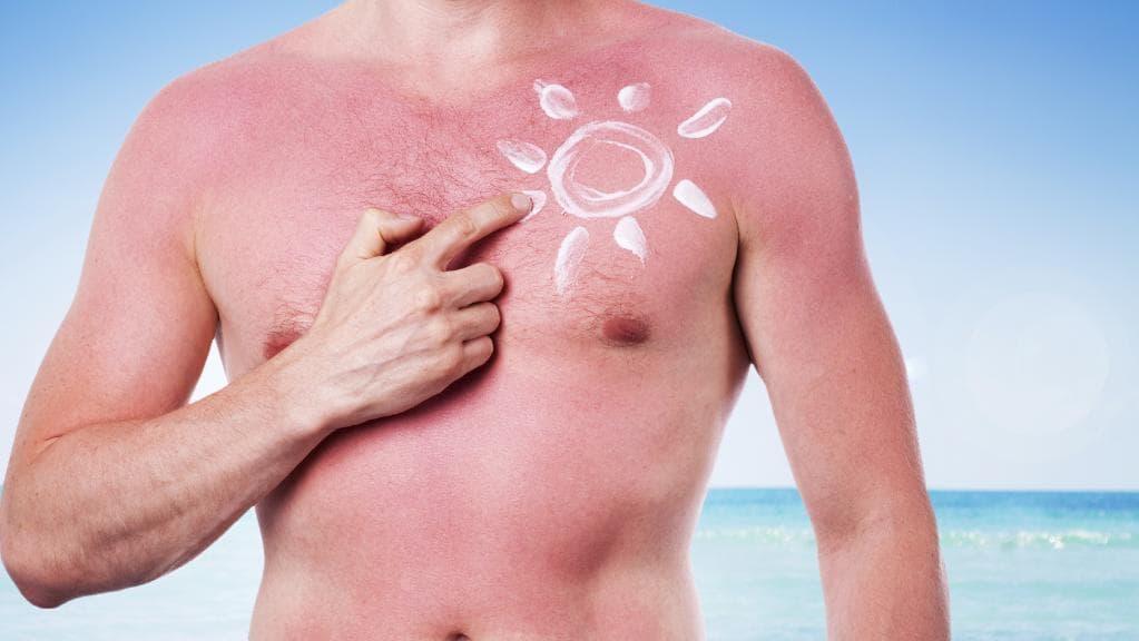 ما هي اسباب سرطان الجلد