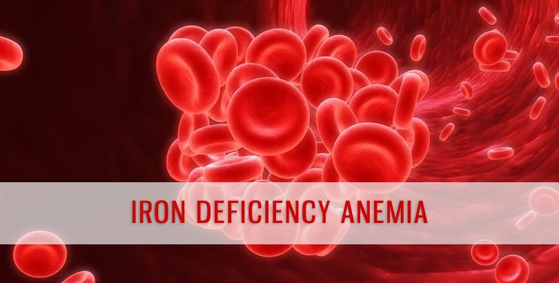 علامات و اعراض نقص الحديد