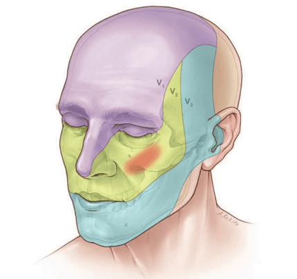 طرق علاج التهاب العصب الخامس