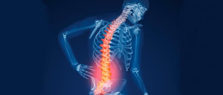 كيف يمكن الوقاية من هشاشة العظام