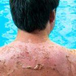 حروق الشمس : اسبابها وخطورتها على الجلد