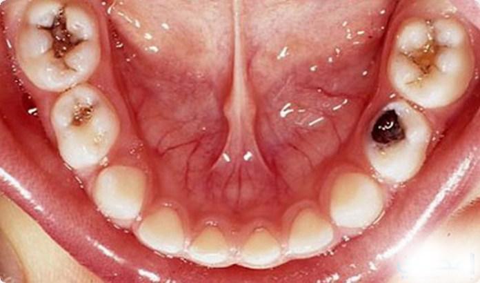 طرق علاج تسوس الاسنان