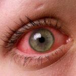 ما هي طرق علاج حساسية العين منزلياً
