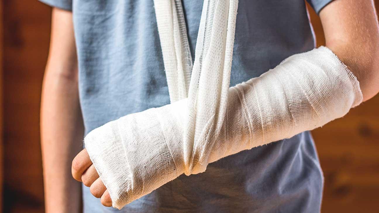 علامات التئام العظام وشفاء الكسور