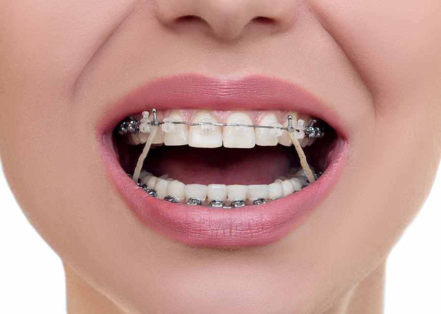 مراحل تقويم الاسنان