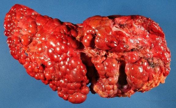 مرض تليف الكبد و علاجه
