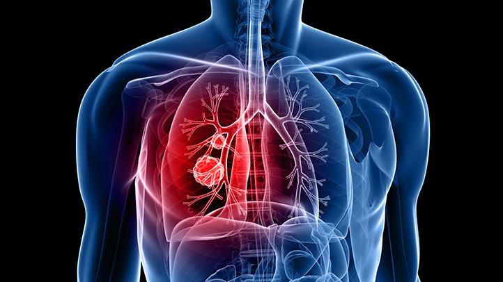 مراحل علاج سرطان الرئة