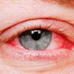 جميع اسباب احمرار العين وعلاجها