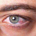 اسباب التهاب العين