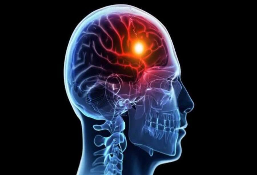 اسباب الجلطة الدماغية