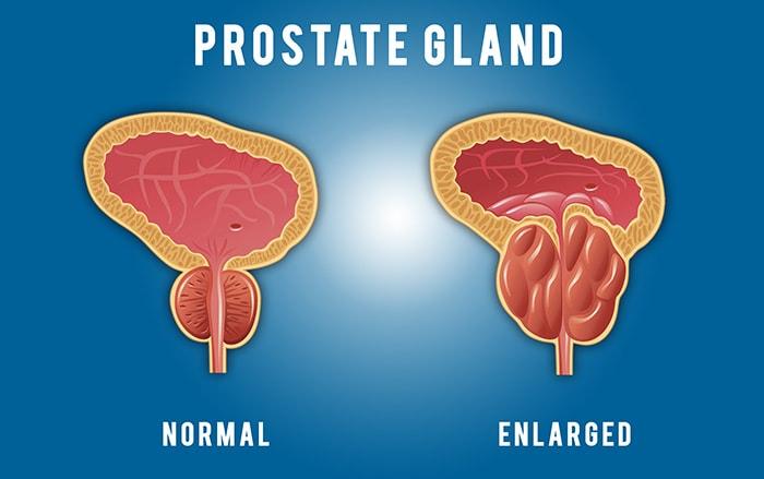 اعراض احتقان البروستاتا