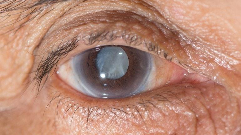 ضغط العين و الماء الازرق