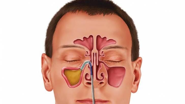 علاج التهاب الجيوب الانفية