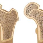 علاج هشاشة العظام بالادوية والطرق الحديثة
