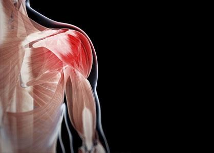 اعراض التهاب العضلات