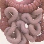 اعراض القولون وأنواع امراضه وسبل الوقاية