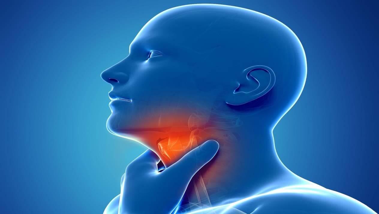 التهاب الحنجرة