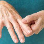 طرق علاج الروماتويد