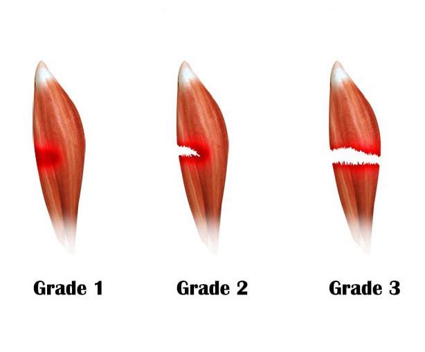 علاج تمزق العضلات