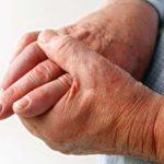 اسباب الاصابة بمرض النقرس
