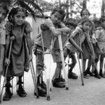 اسباب شلل الاطفال وسر انتشاره
