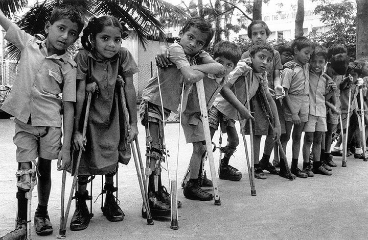 اسباب شلل الاطفال
