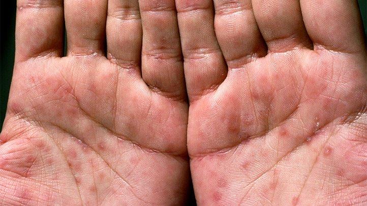 كيفية الوقاية من مرض الزهري