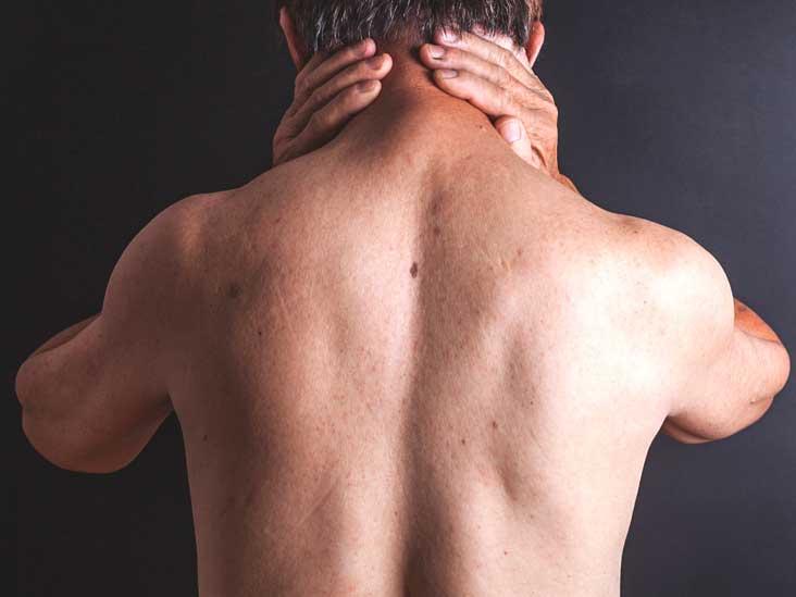 التهاب السحايا هل هو معدي