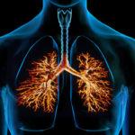 التهاب الصدرية عند الكبار