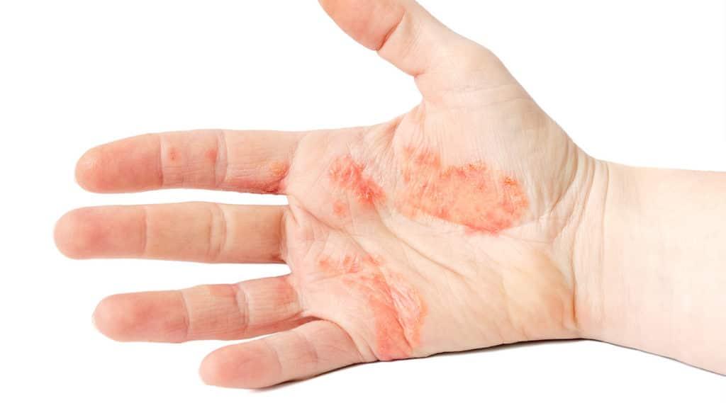 علاج اكزيما اليدين والوقاية منها