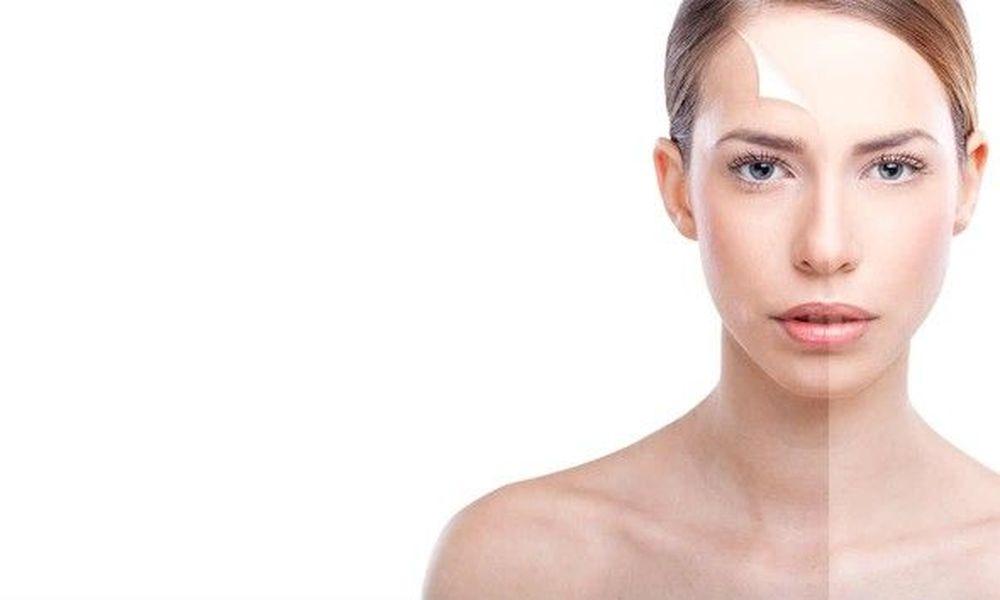 علاج حروق الوجه بعد التقشير