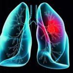 كم يعيش مريض سرطان الرئة