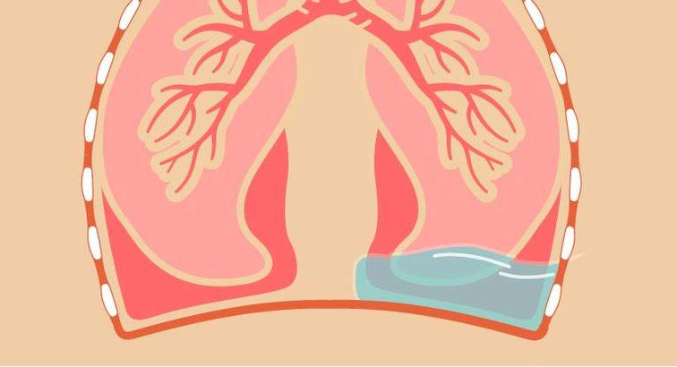 ماء الرئة والسرطان