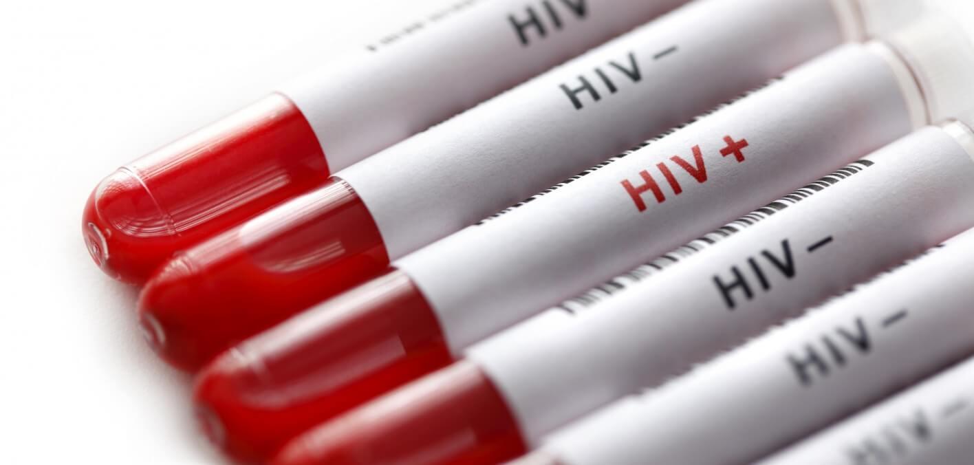 اعراض مرض الايدز عند الرجال