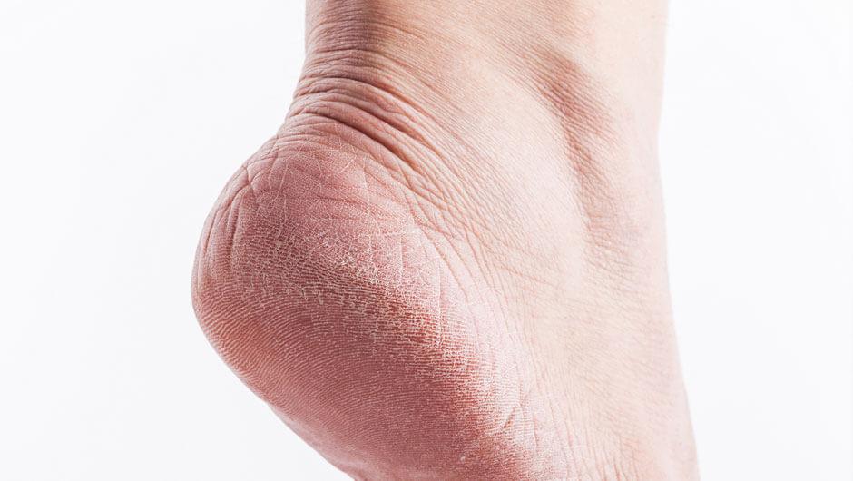 علاج تشقق القدمين