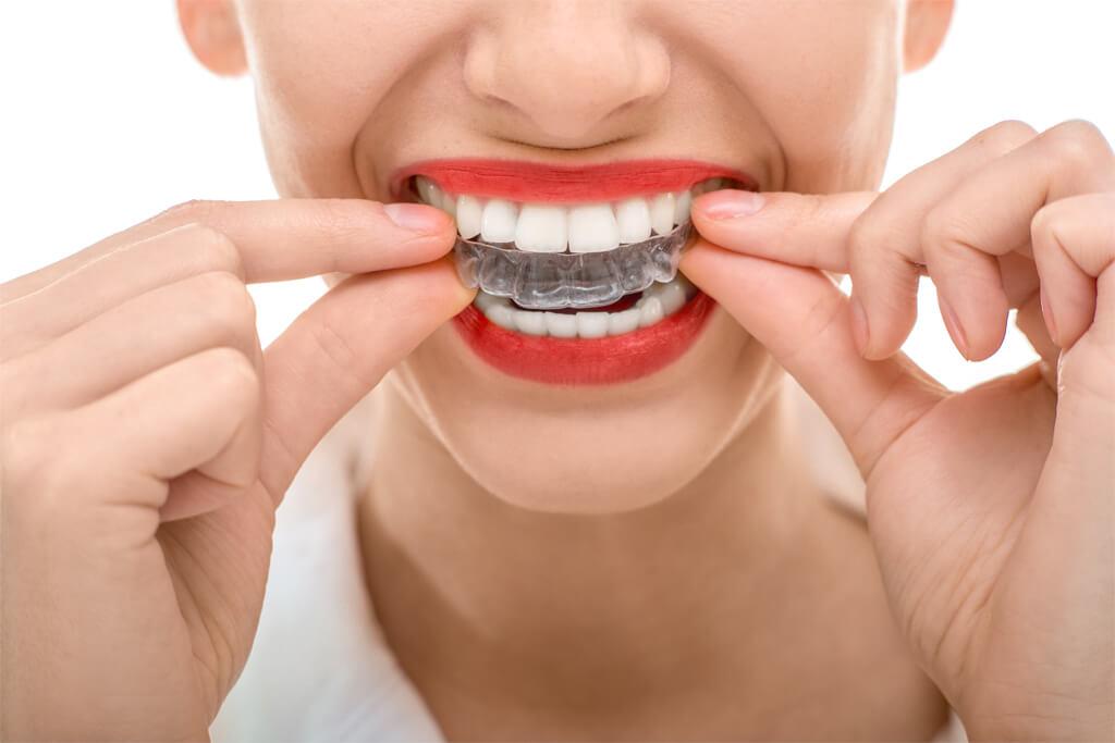 تقويم الاسنان الشفاف